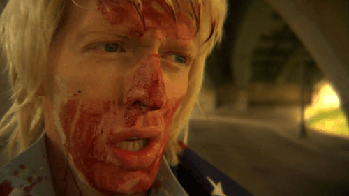 Man with blond hair and a bloody face