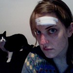 A bruised Lori Felker stares into the camera while her black and white cat stares at her